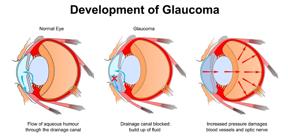Development of Glaucoma Diagram