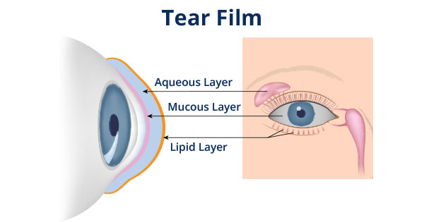 Tear Film Dry Eye Diagram